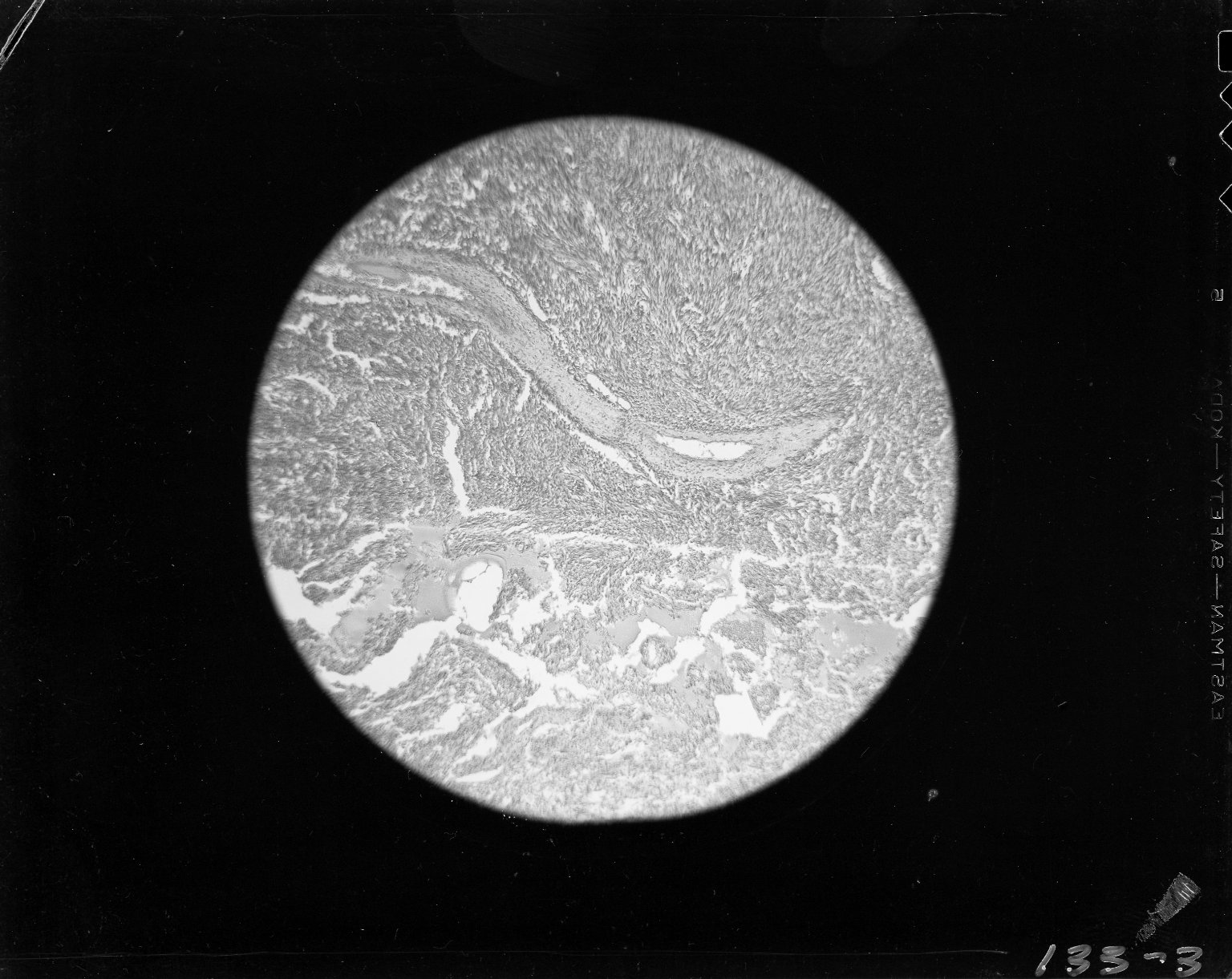 Photomicrograph with nuclei